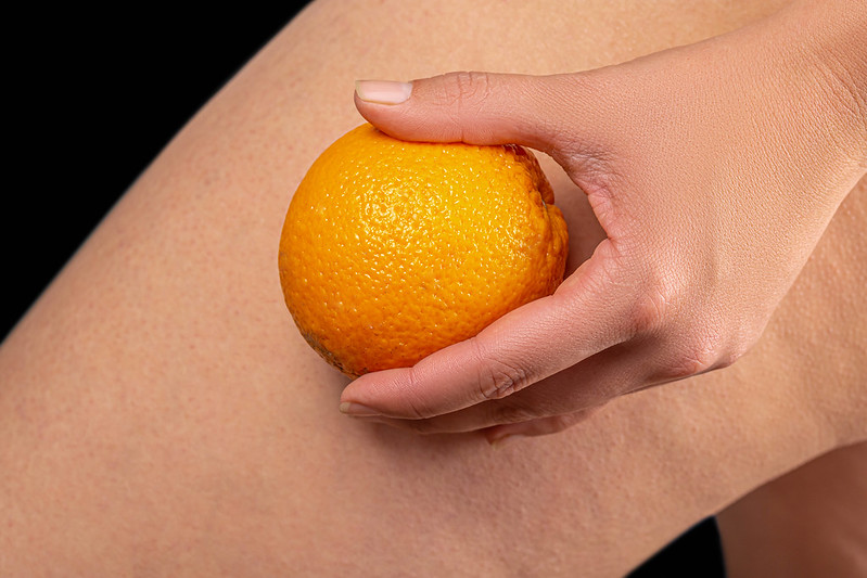 cellulite treatment remedies