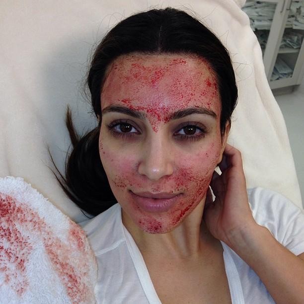 vampire facial kim kardashian skincare treatments