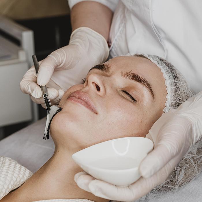 chemical face peel treatment clinic skincare procedures